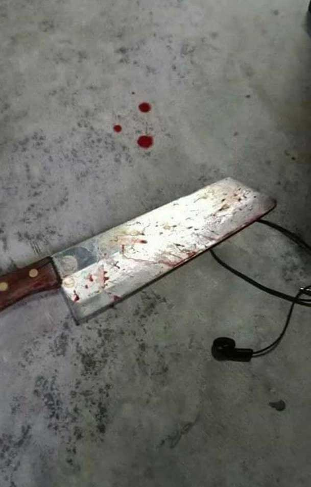 When A Wife Cut Her Cheater Husbands Penis And Threw Out Of Window-5577