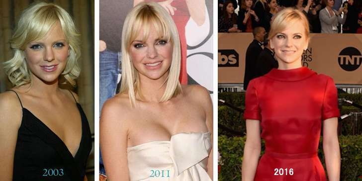 How different actor Anna Faris looks after the boob job? Is she happy with the change after surgery?