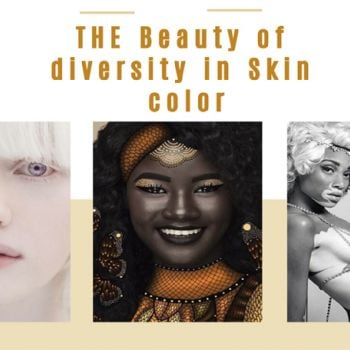 Five Unconventionally Beautiful Models Showcase the Beauty of Diversity in Skin Color