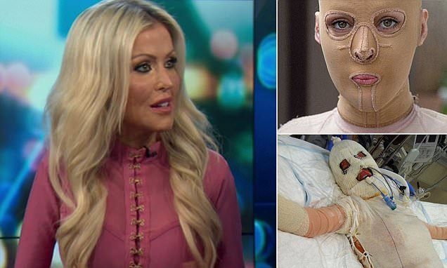 Dana Vulin, Burnt Alive, Shares Her Painful Experience On Recovering From The Worst Condition