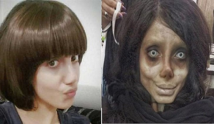 Iranian Teenager's 50 Surgeries To Look Like Her Idol Angelina Jolie Backfires