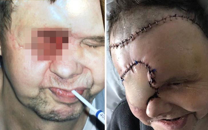 OMG!!Man Misdiagnosed As Migraine For Eye Cancer Left With Hole In Face