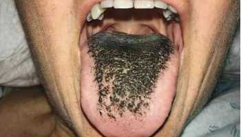 Oh My God! Woman Gets Weird 'Black Hairy Tongue' After She Takes Antibiotics For Her Injured Legs